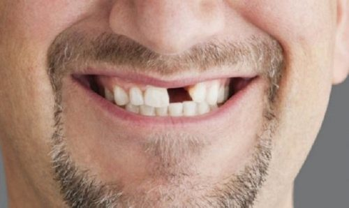 mơ thấy rụng răng không chảy máu