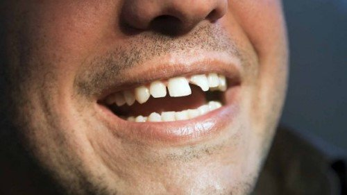 mơ thấy bị mẻ răng đánh con gì